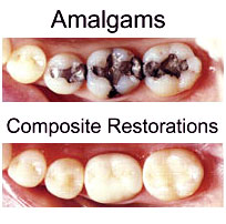 Restorative Dentistry/Fillings